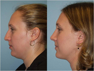Chin liposuction surgery